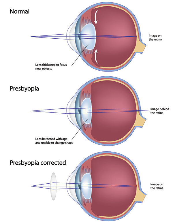 Presbyopia in Westford